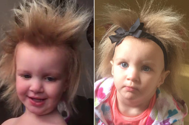 hair-disorder-feature